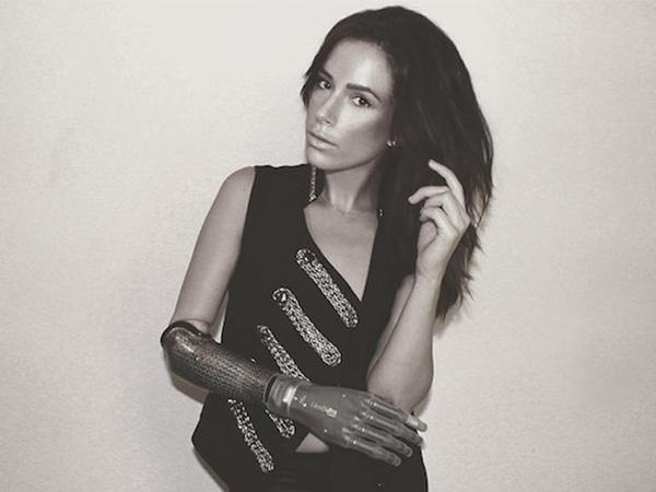 Модель с бионическим протезом рушит все стандарты красоты