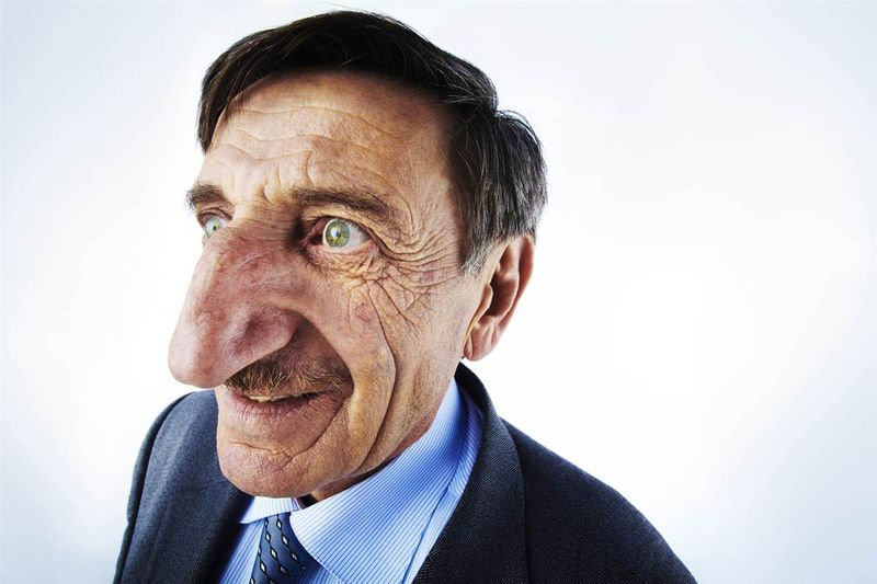 Самый длинный в мире нос - Мехмет Озиюреку (Mehmet Ozyurek)