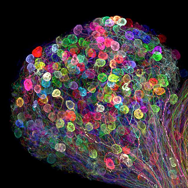 7-е место:скопление аксонов в нервном узле (ганглии). Фотограф Ryo Egawa