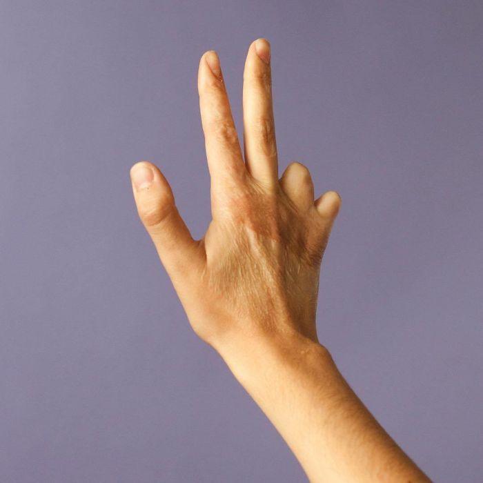 «За шрамами»: что скрывается за человеческими ранами