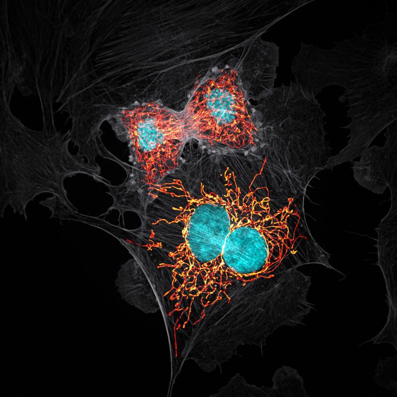 10-е место: клетки в стадии митоза (непрямое деление). Фотограф Jason M. Kirk