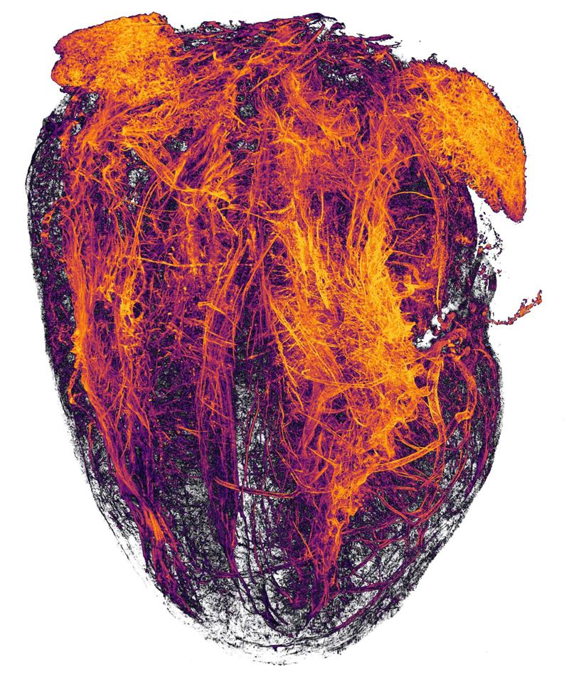 20-е место: Кровеносные сосуды мышиного сердца после инфаркта миокарда. Фотографы Simon Merz, Lea Bornemann, Sebastian Korste