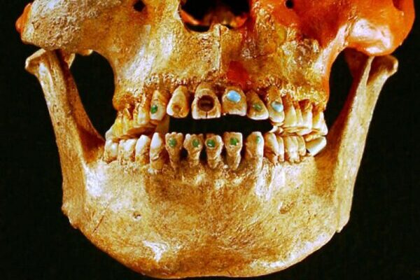 Зубные украшения майя со вставками из драгоценных камней