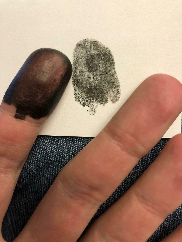 Парень родился без отпечатков пальцев рук и ног