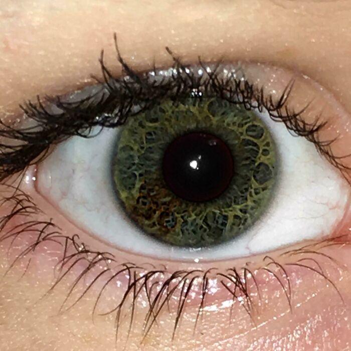 Небольшая секторная гетерохромия в правом глазу и интересный рисунок глаз