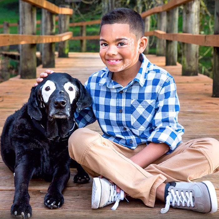 У 8-летнего Картера Бланшара и собаки Роуди заболевание под названием витилиго
