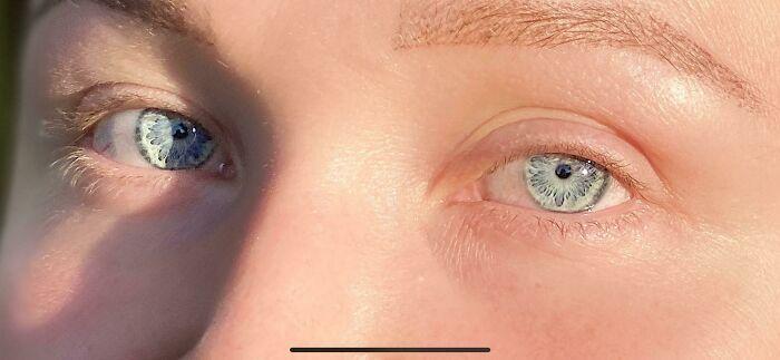 «Узор» в глазах