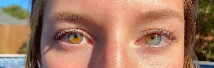 Гетерохромия обоих глаз